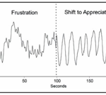 Heart Rate Variability Chart